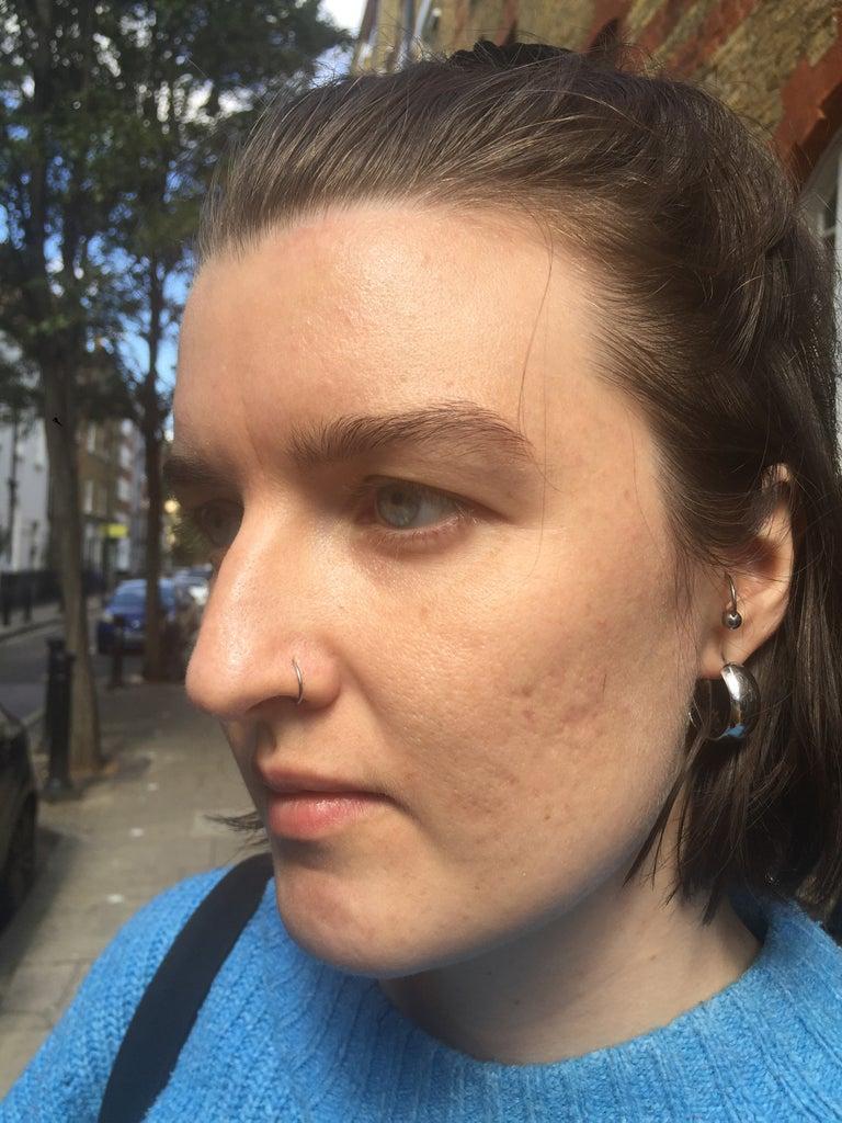 Ausdrücken verboten: Das geschah, als ich meine Akne einen Monat in Ruhe ließ