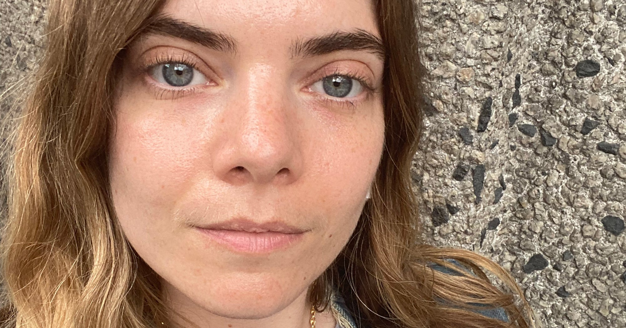 I Got My Face Lasered To Improve My Skin & Here's What I Learned