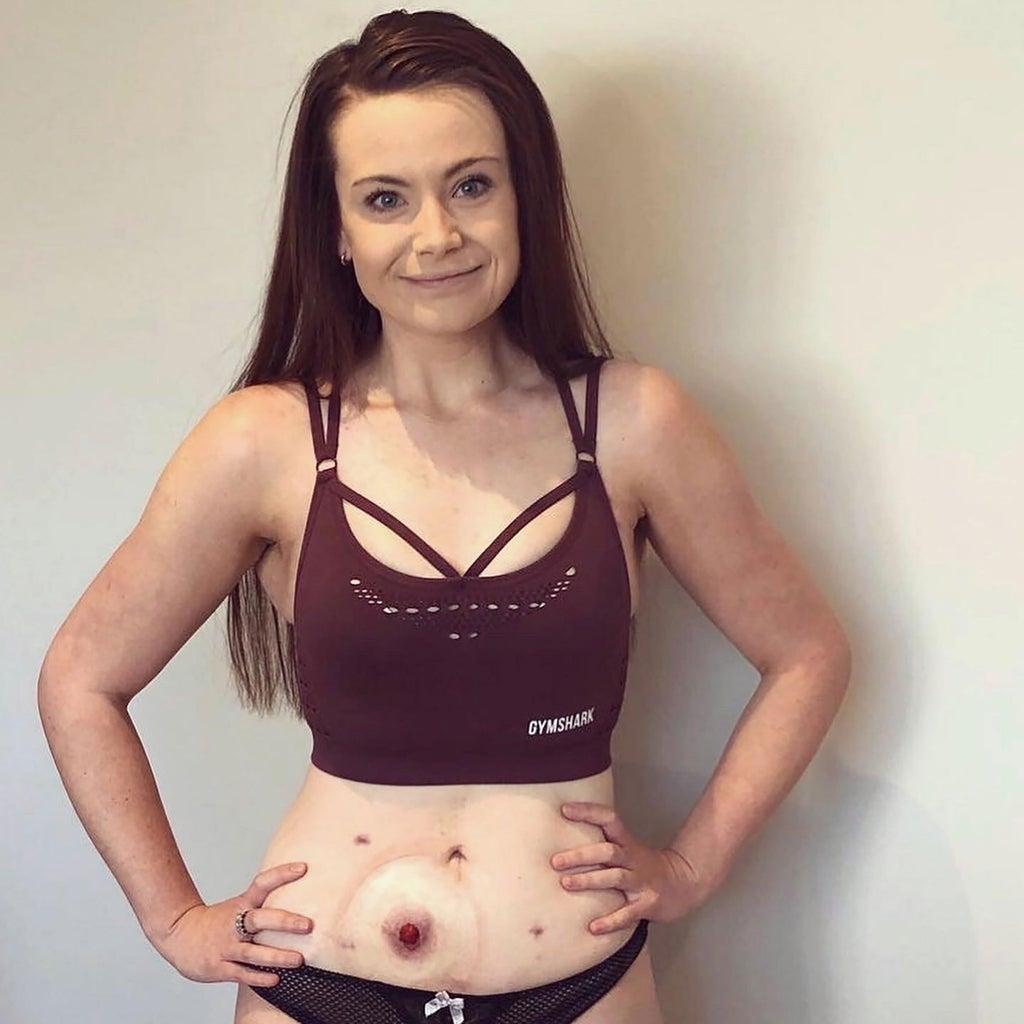 Mein Stoma rettete mein Leben – aber zerstörte meine Psyche