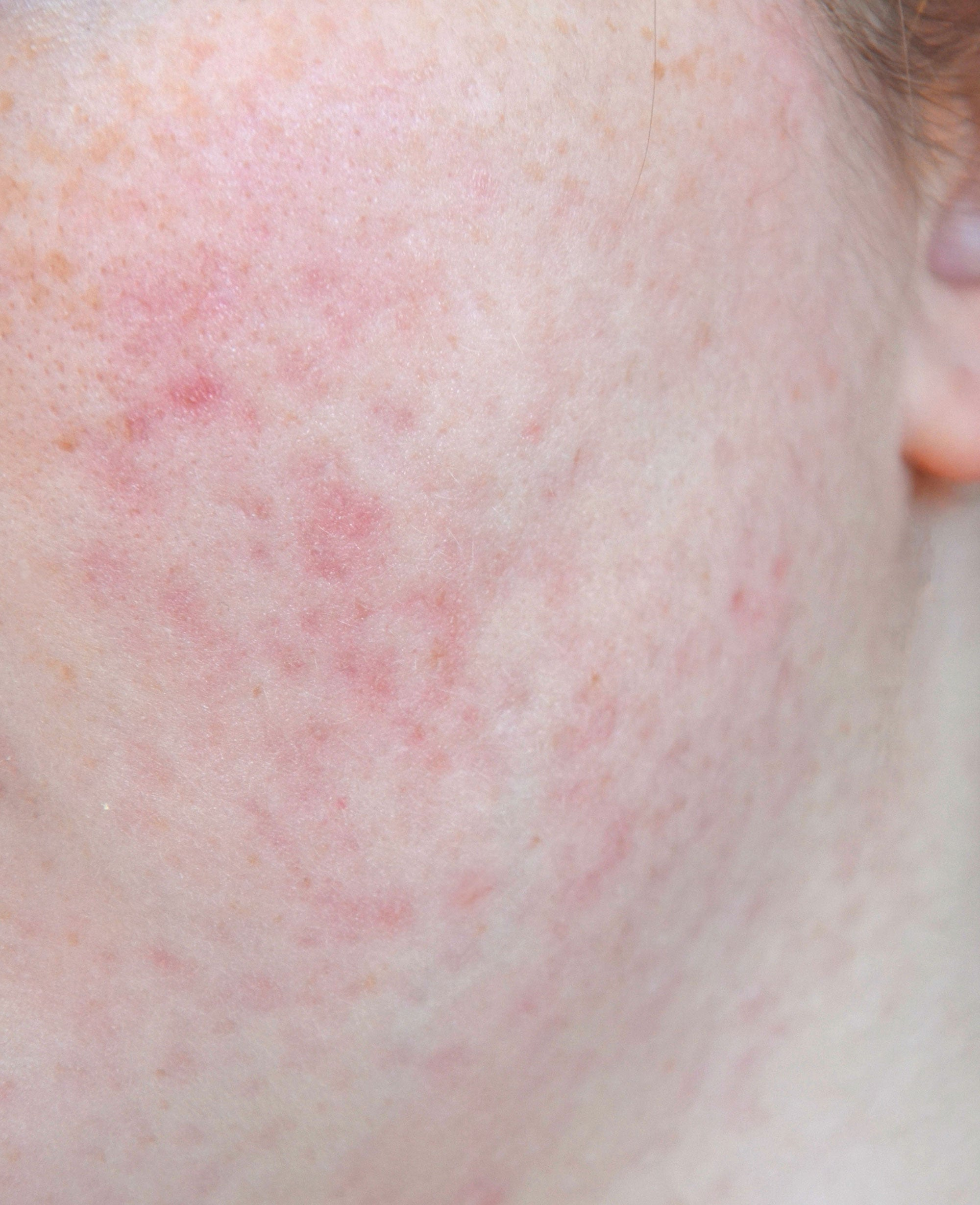 How To Fade Pitted Acne Scars Best Treatment Products