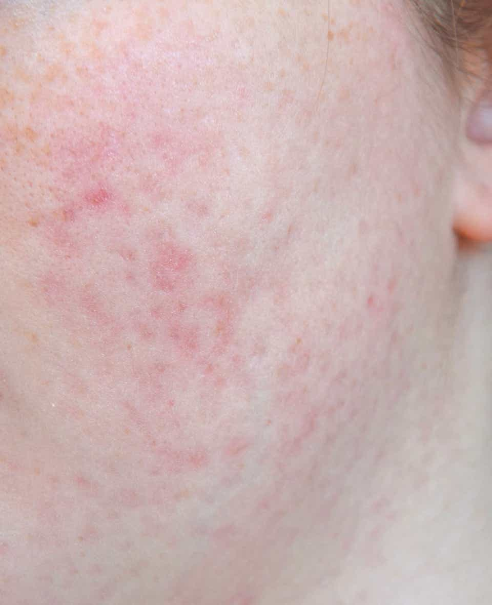 How To Fade Pitted Acne Scars Best