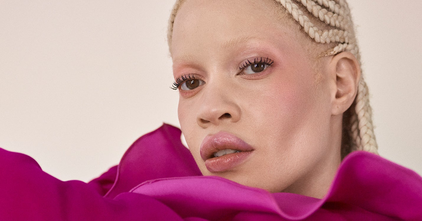 I Was Bullied For My Albinism — Now It's My Biggest Source Of Confidence