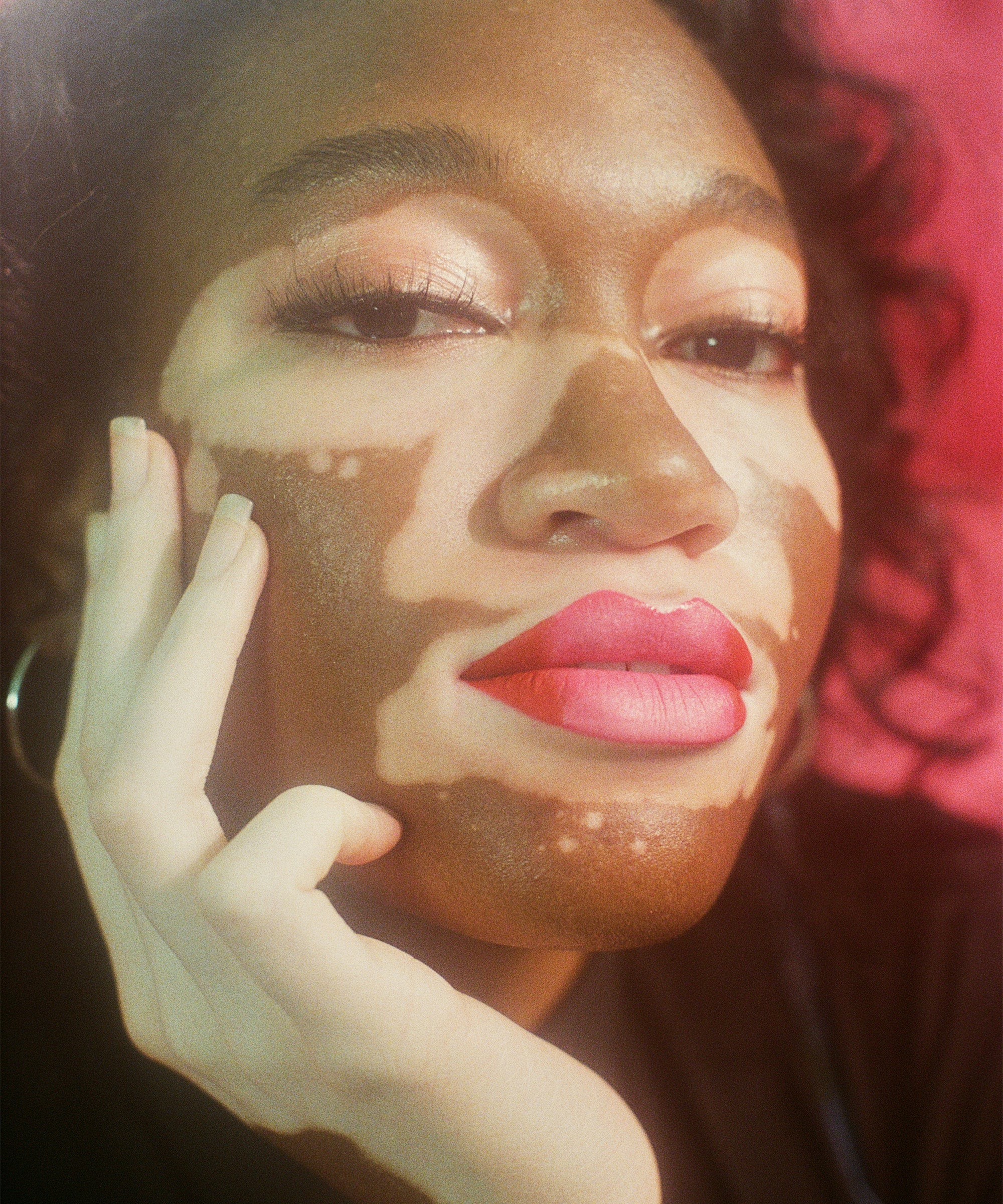 Storm Dove Model Vitiligo Power Faces Target Beauty