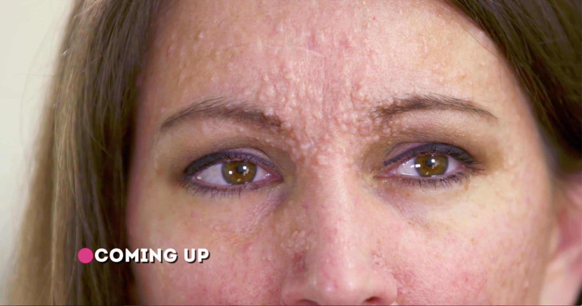Dr Pimple Popper New Season 4 Episode 1 Premiere Review